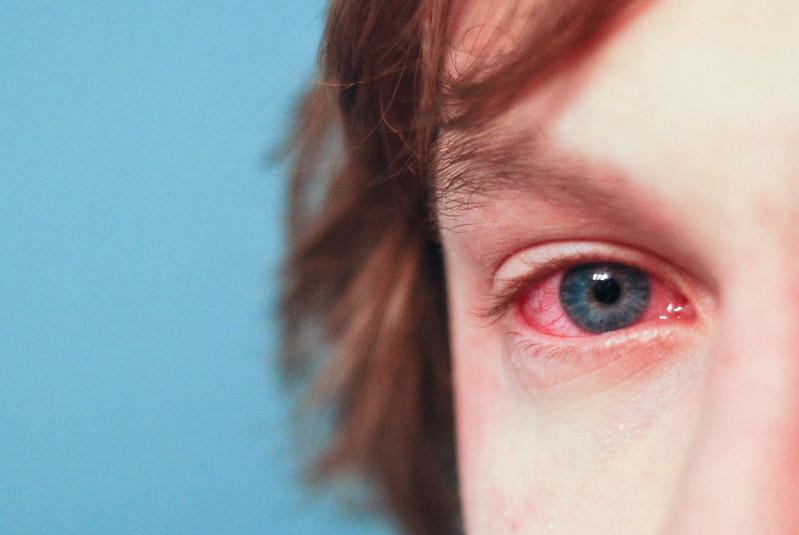 Здравствуй, аллергия. Мы тебя ждали и встретим во всеоружии